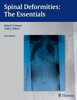 Abbildung von Heary / Albert | Spinal Deformities | 2. Auflage | 2014 | beck-shop.de
