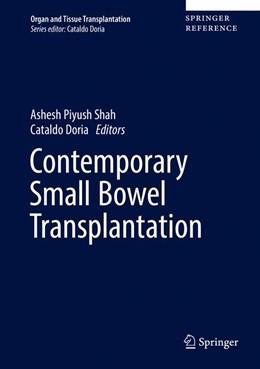 Abbildung von Shah / Doria | Contemporary Pancreas and Small Bowel Transplantation | 1. Auflage | 2019 | beck-shop.de