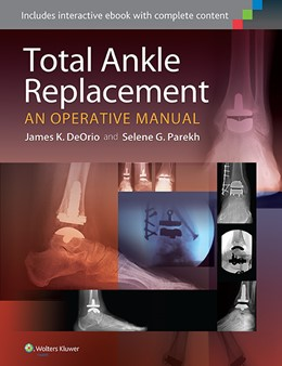 Abbildung von DeOrio / Parekh | Total Ankle Replacement: An Operative Manual | 2014