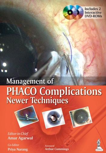 Abbildung von Agarwal | Management of Phaco Complications | 2014
