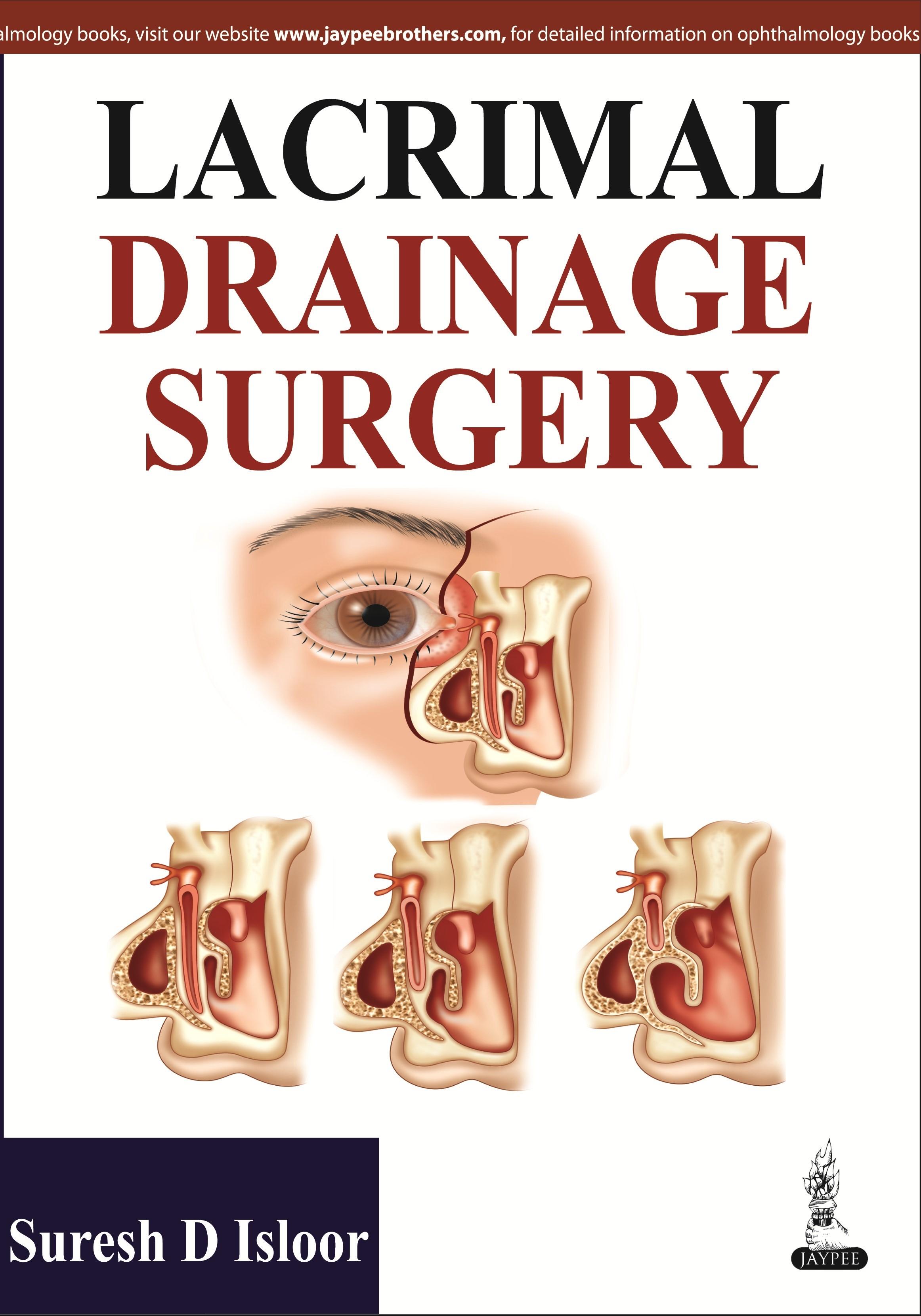 Abbildung von Isloor | Lacrimal Drainage Surgery | 2014