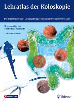 Abbildung von Messmann | Lehratlas der Koloskopie | 2. Auflage | 2014 | beck-shop.de