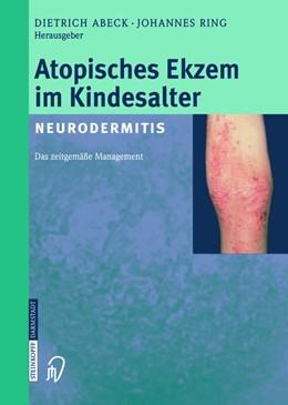 Abbildung von Abeck / Ring | Atopisches Ekzem im Kindesalter (Neurodermitis) | 1. Auflage | 2014 | beck-shop.de