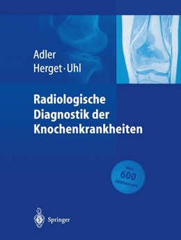 Abbildung von Adler / Herget / Uhl   Radiologische Diagnostik der Knochenkrankheiten   2014