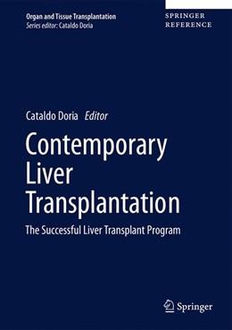 Abbildung von Doria | Contemporary Liver Transplantation | 1st ed. 2017 | 2017 | The Successful Liver Transplan...