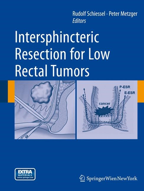 Abbildung von Schiessel / Metzger | Intersphincteric Resection for Low Rectal Tumors | 2014