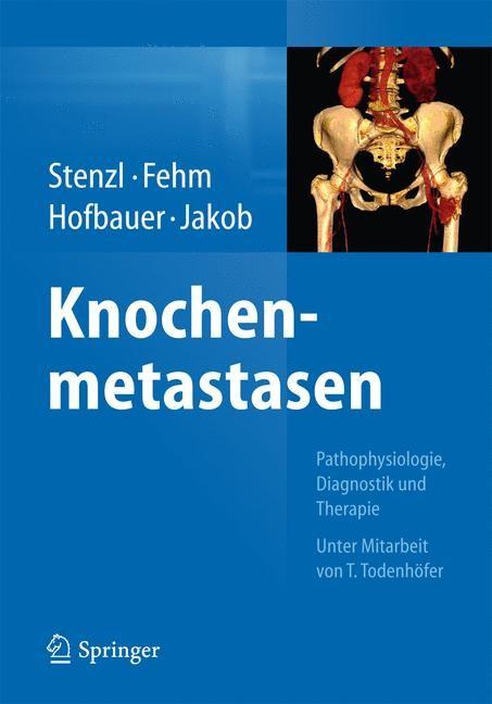 Abbildung von Stenzl / Fehm / Hofbauer / Jakob   Knochenmetastasen   2014