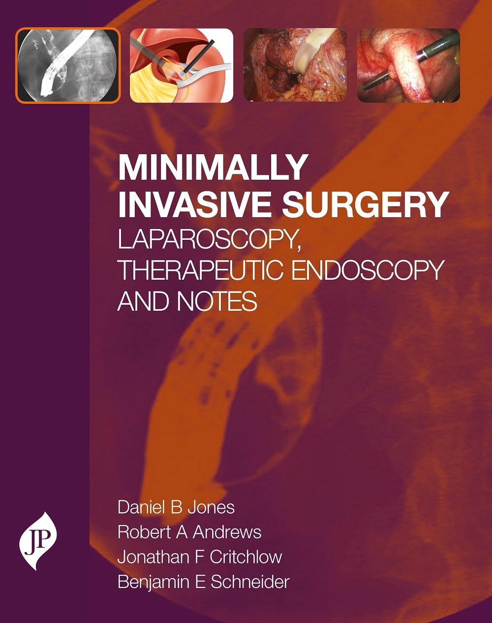 Abbildung von Jones / Andrews / Critchlow | Minimally Invasive Surgery | 2015