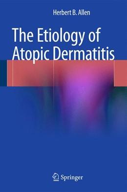 Abbildung von Allen | The Etiology of Atopic Dermatitis | 2015