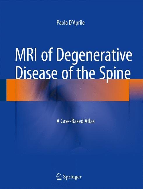 Abbildung von D'Aprile | MRI of Degenerative Disease of the Spine | 2014