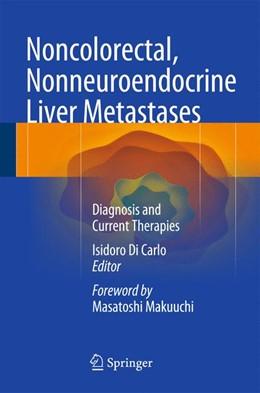 Abbildung von Di Carlo | Noncolorectal, Nonneuroendocrine Liver Metastases | 2014 | Diagnosis and Current Therapie...