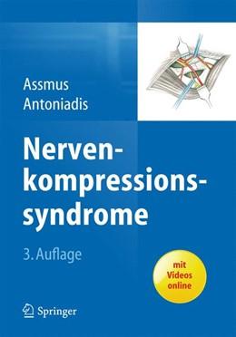 Abbildung von Assmus / Antoniadis | Nervenkompressionssyndrome | 2014