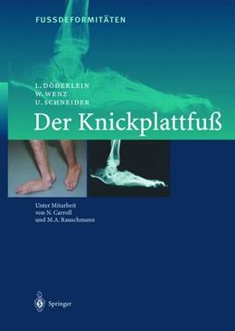 Abbildung von Döderlein / Wenz / Schneider   FussdeformitÄten   2012   Der Knickplattfuss