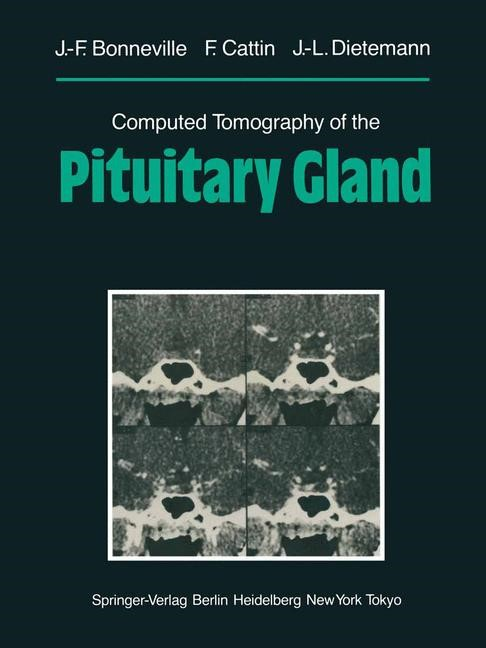 Computed Tomography of the Pituitary Gland   Bonneville / Cattin / Dietemann, 2012   Buch (Cover)