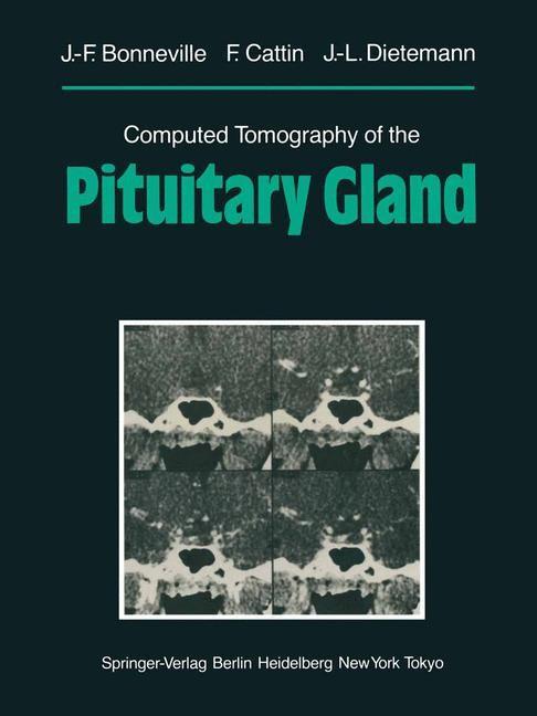 Abbildung von Bonneville / Cattin / Dietemann | Computed Tomography of the Pituitary Gland | 2012