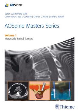 Abbildung von AOSpine Masters Series Volume 1: Metastatic Spinal Tumors   2014