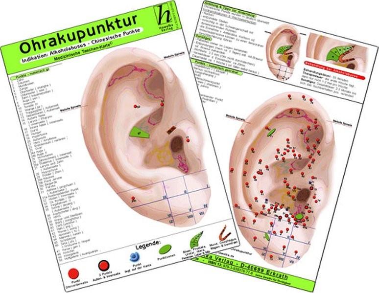 Ohrakupunktur - Indikation: Übergewicht / Adipositas - chinesische Ohrakupunktur, 2009 (Cover)