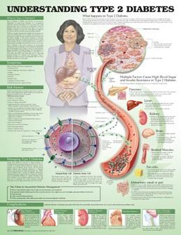 Abbildung von Unger   Understanding Type 2 Diabetes Anatomical Chart   2014