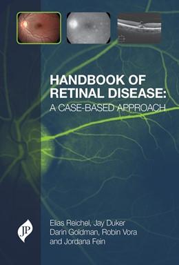Abbildung von Reichel / Duker / Goldman | Handbook of Retinal Disease: a Case-based Approach | 2015