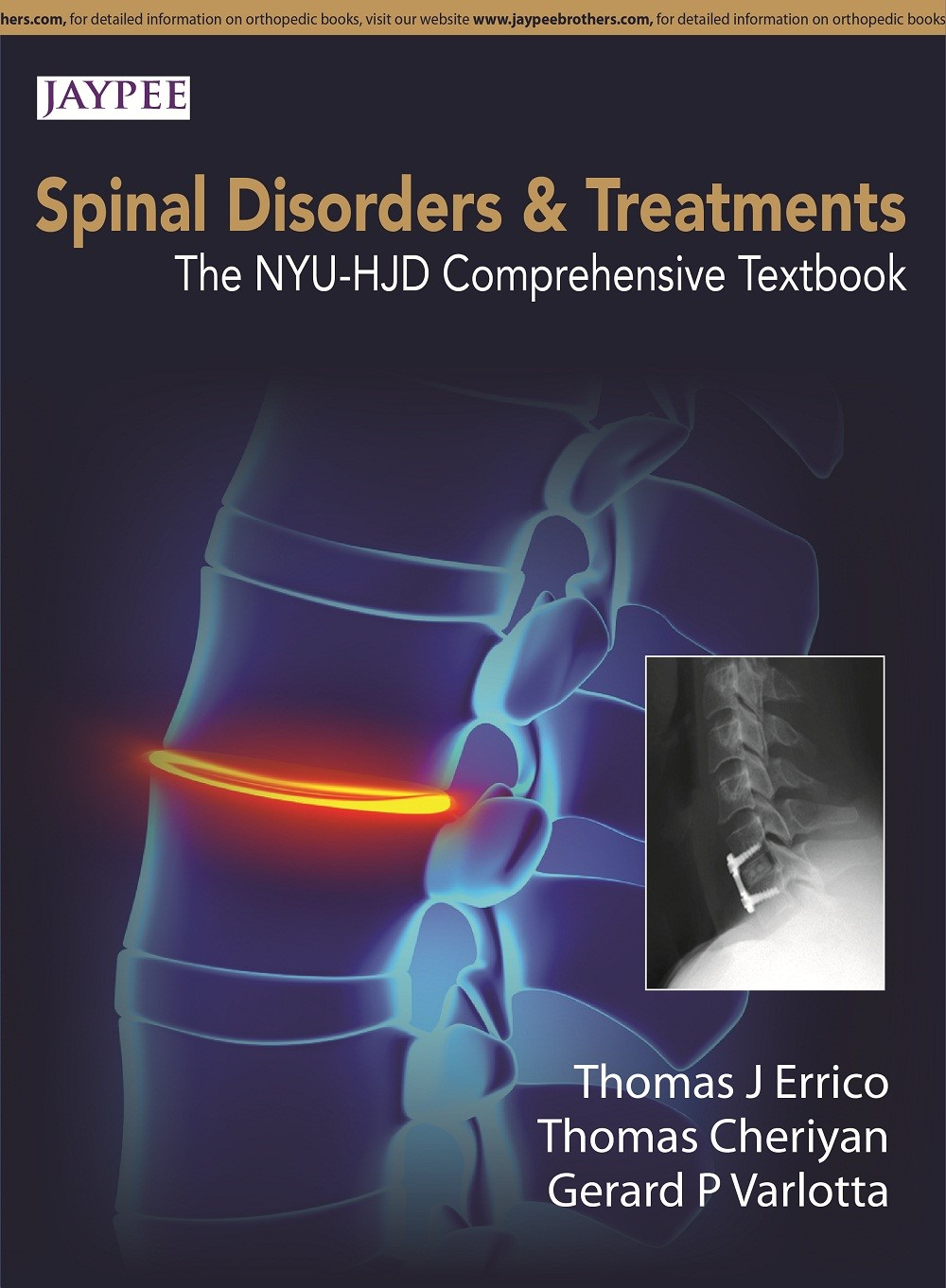 Abbildung von Errico / Cheriyan / Varlotta | Spinal Disorders & Treatment: The NYU-HJD Comprehensive Textbook | 2015
