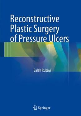 Abbildung von Rubayi | Reconstructive Plastic Surgery of Pressure Ulcers | 1. Auflage | 2015 | beck-shop.de
