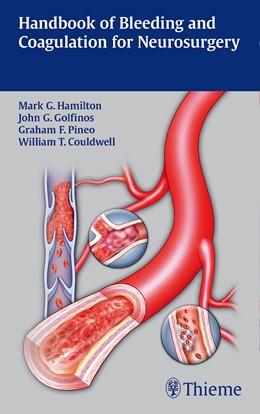 Abbildung von Hamilton / Golfinos / Pineo | Handbook of Bleeding and Coagulation for Neurosurgery | 2014