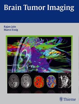 Abbildung von Jain / Essig | Brain Tumor Imaging | 1. Auflage | 2015 | beck-shop.de