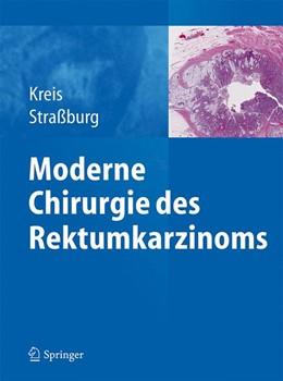 Abbildung von Kreis / Straßburg | Moderne Chirurgie des Rektumkarzinoms | 1. Auflage | 2015 | beck-shop.de