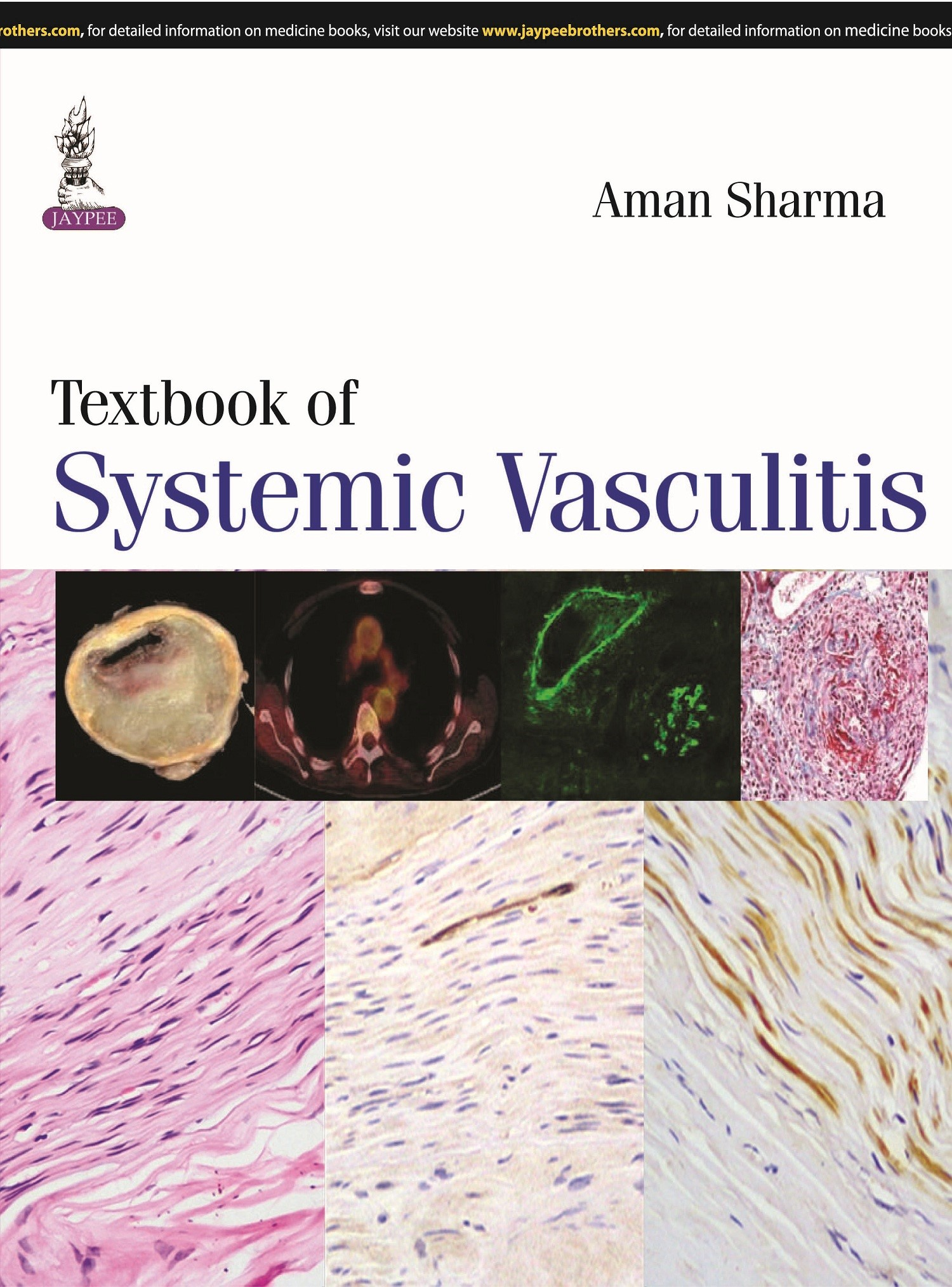 Abbildung von Sharma | Textbook of Systemic Vasculitis | 2015