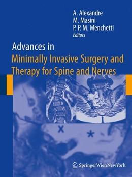 Abbildung von Alexandre / Masini / Menchetti | Advances in Minimally Invasive Surgery and Therapy for Spine and Nerves | 2011 | 2010