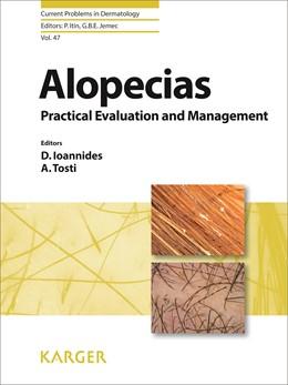 Abbildung von Ioannides / Tosti   Alopecias - Practical Evaluation and Management   1. Auflage   2015   47   beck-shop.de