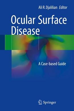 Abbildung von Djalilian | Ocular Surface Disease | 1. Auflage | 2017 | beck-shop.de