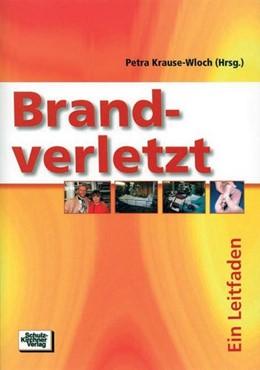 Abbildung von Krause-Wloch | Brandverletzt | 2004 | Ein Leitfaden