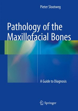 Abbildung von Slootweg | Pathology of the Maxillofacial Bones | 1. Auflage | 2015 | beck-shop.de