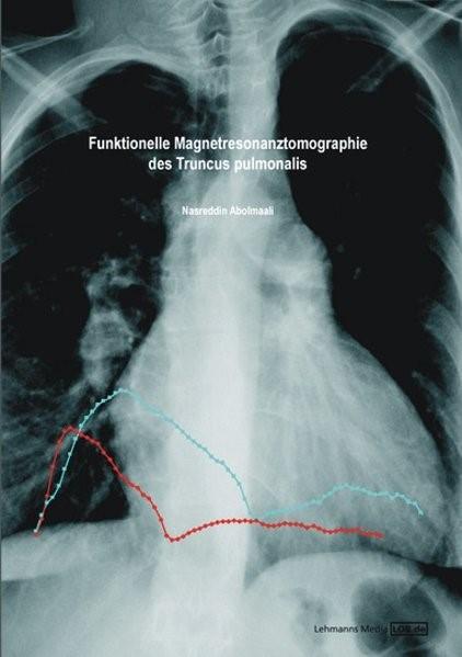 Abbildung von Abolmaali   Funktionelle Magnetresonanztomographie des Truncus pulmonalis   2006