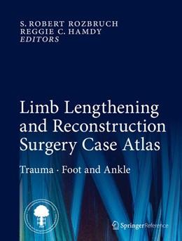Abbildung von Rozbruch / Hamdy | Limb Lengthening and Reconstruction Surgery Case Atlas | 1. Auflage | 2015 | beck-shop.de