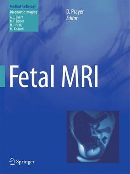 Abbildung von Prayer | Fetal MRI | 2011 | 2014