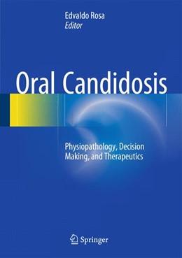 Abbildung von Ribeiro Rosa | Oral Candidosis | 1st ed. 2015 | 2015 | Physiopathology, Decision Maki...