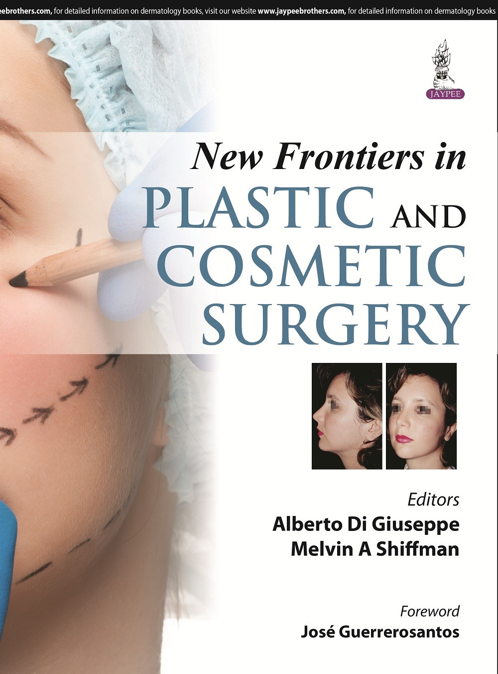 Abbildung von Di Giuseppe / Shiffman | New Frontiers in Plastic and Cosmetic Surgery | 2015