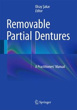 Abbildung von Sakar   Removable Partial Dentures   1st ed. 2016   2015   A Practitioners' Manual