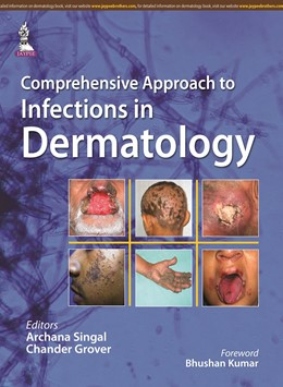 Abbildung von Singal / Grover | Comprehensive Approach to Infections in Dermatology | 2016