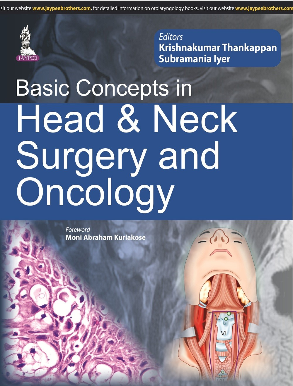Abbildung von Thankappan | Basic Concepts in Head & Neck Surgery and Oncology | 2015