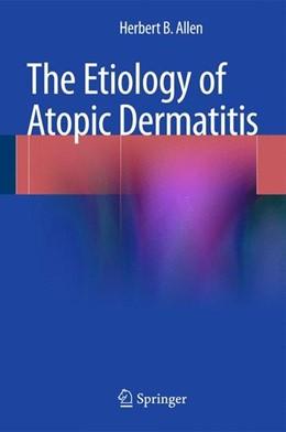 Abbildung von Allen | The Etiology of Atopic Dermatitis | 2015 | 2014