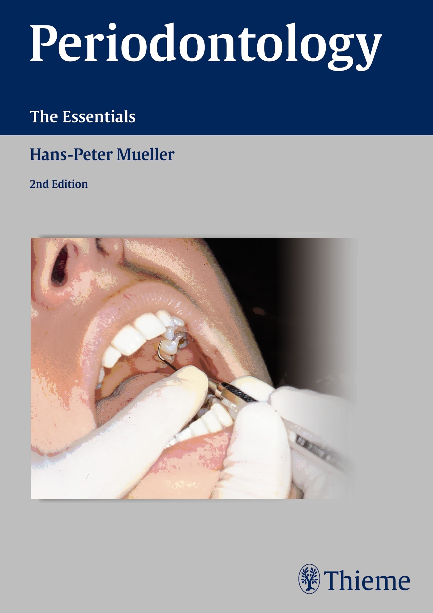 Periodontology | Müller, 2015 | Buch (Cover)