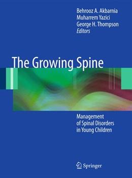 Abbildung von Akbarnia / Yazici / Thompson   The Growing Spine   2010   2014   Management of Spinal Disorders...