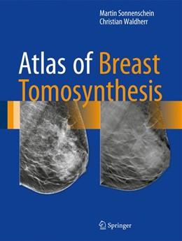 Abbildung von Sonnenschein / Waldherr | Atlas of Breast Tomosynthesis | 1. Auflage | 2017 | beck-shop.de