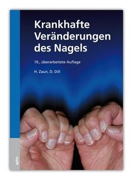 Abbildung von Zaun / Dill | Krankhafte Veränderungen des Nagels | 10., überarb. Auflage | 2013