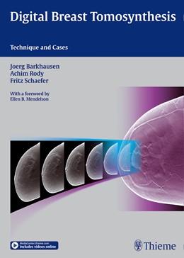 Abbildung von Digital Breast Tomosynthesis | 1. Auflage | 2015 | beck-shop.de
