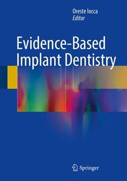 Abbildung von Iocca   Evidence-Based Implant Dentistry   1. Auflage   2016   beck-shop.de