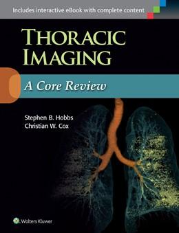 Abbildung von Hobbs / Cox | Thoracic Imaging: A Core Review | 2015